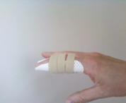 static splint