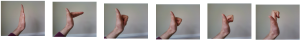 Aftercare after surgery | The British Dupuytren's Society